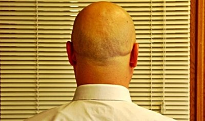 What S An Effective Dry Scalp Treatment For A Shaved Head