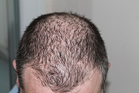 can scalp eczema cause hair loss?
